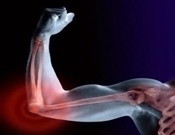 Фото. Белки для крепости костей