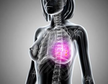 вероятность заболеть раком молочной железы