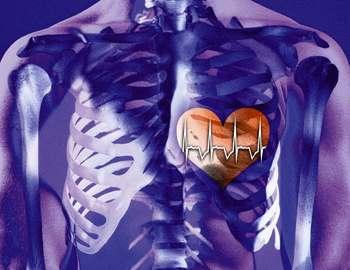 сердце после миакарда