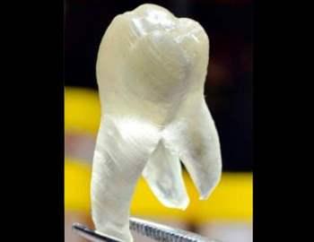 напечатанный зуб
