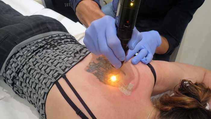 выведение татуировки
