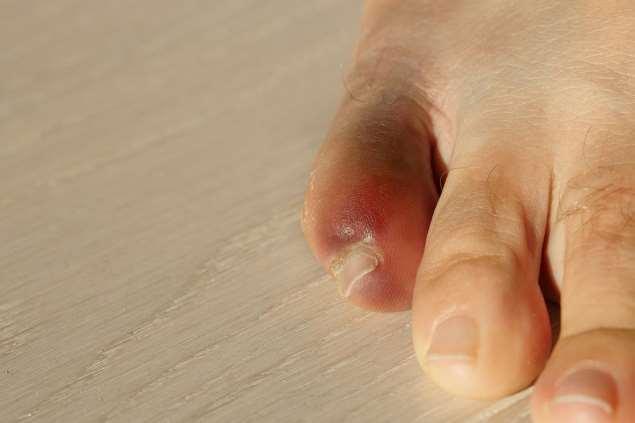 сломанный мизинец на ноге