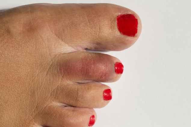 поисневший палец на ноге