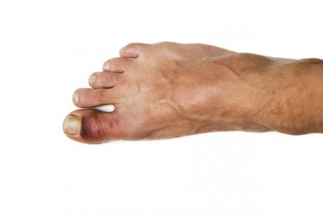 на ноге сломан большой палец