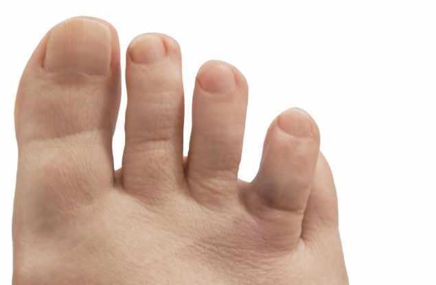 перелом со смещением на пальце ноги