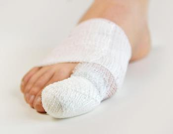сломанный палец ноги